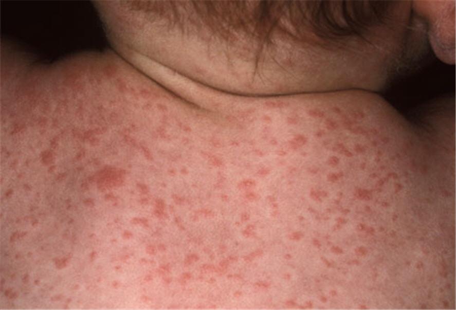 <b>12. Ban đào/bệnh thứ sáu (Roseola/Sixth Disease)</b><br/>Ban đào, một bệnh nhẹ, được đặt tên theo thứ tự trong danh sách sáu phát ban thong thường của trẻ. Trẻ em từ 6 tháng tới 2 tuổi dễ bị bệnh nhất. Hiếm gặp sau tuổi thứ 4. Biểu hiện ban đầu của bệnh là cảm lạnh, sau một vài ngày xuất hiện sốt cao (sốt có thể gây co giật). Sau đó cơn sốt kết thúc đột ngột. Sau khi hết sốt, ban sẩn hoặc phẳng nhỏ mầu hồng xuất hiện. Ban xuất hiện đầu tiên ở ngực và lung, sau đó tới tay và chân. Hình ảnh: Tổn thương bản sẩn/phẳng mầu hồng của ban đào/bệnh thứ sáu